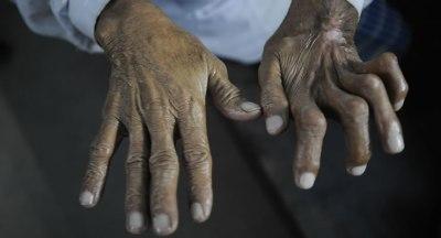 Leprosy Mission Image